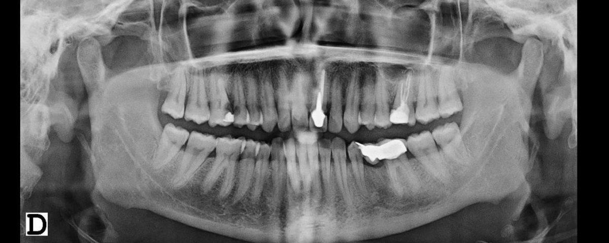 Ortopantomografia-Panoramica Bucal