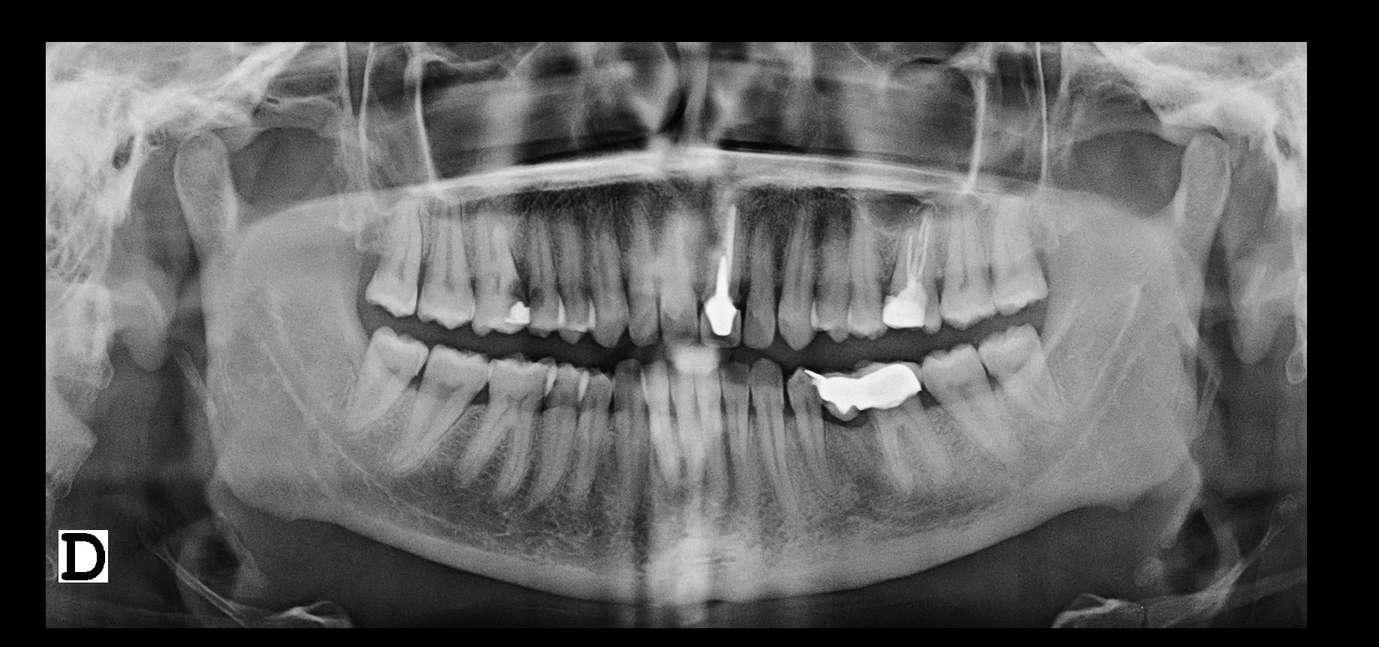 Imatge radiològica bucal